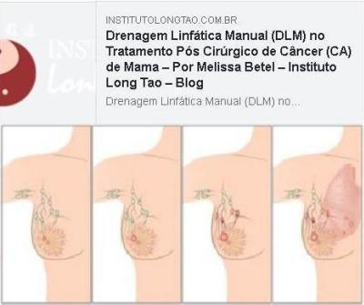 Drenagem Linfatica no Tratamento de Cancer de Mama