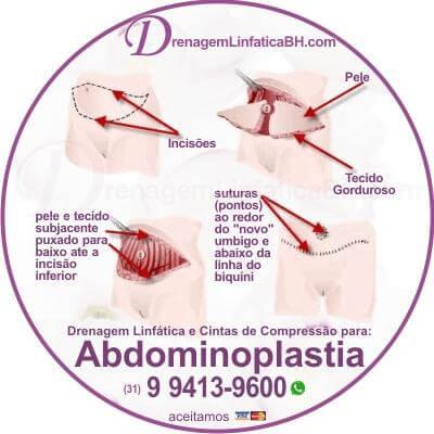 Drenagem Linfática na Mini Abdominoplastia, na Abdominoplstia Clássica ou Abdominoplastia Âncora