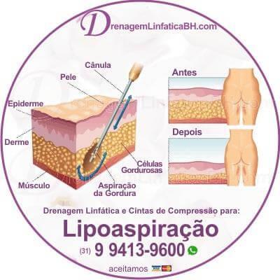 Sucesso no Pós Operatório de Lipoaspiração e Lipoescultura Sessoes de Drenagem Linfatica