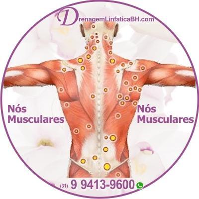 Os nós musculares podem ser encontrados em qualquer parte muscular do corpo e podem ser causados por estresse, desidratação e até maus hábitos alimentares